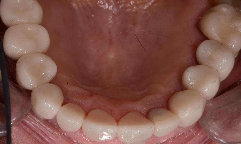 Implants-and-Crowns-After-Image