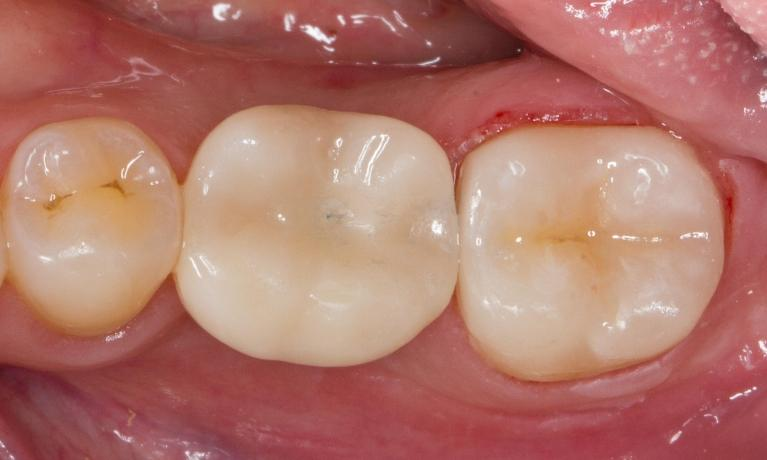 Posterior-Crowns-After-Image