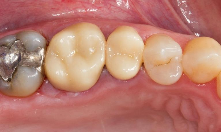 Replacing-Large-Silver-Fillings-with-All-Ceramic-After-Image