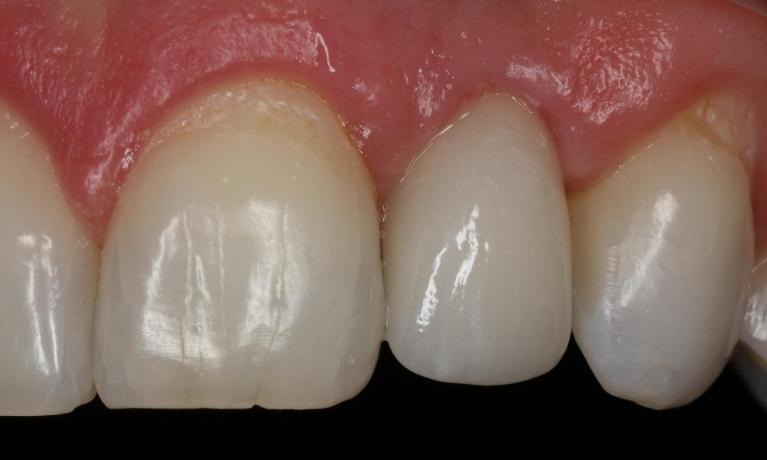 Restored-Implants-Anterior-After-Image