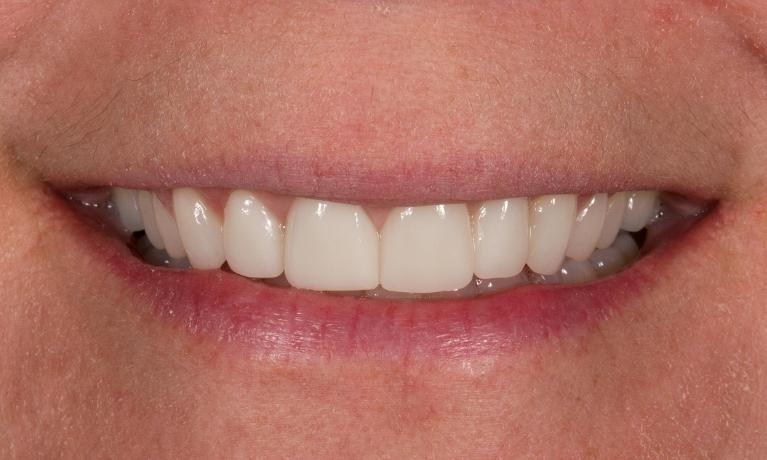 Smile-Design-with-Ceramic-Crowns-After-Image