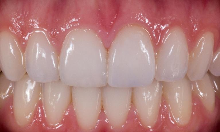 Anterior-Crowns-After-Image