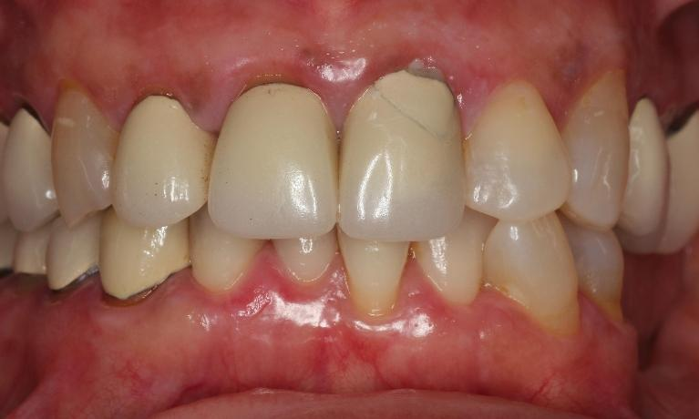 Anterior-Crowns-Before-Image