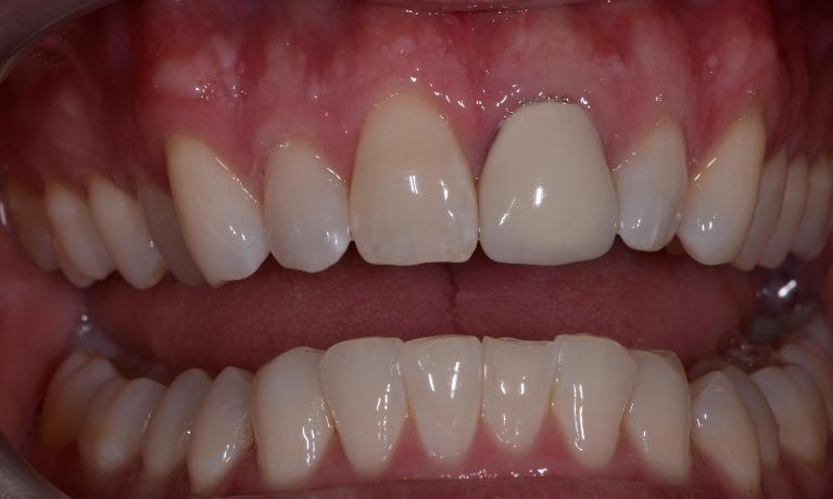 New-Front-Tooth-Before-Image