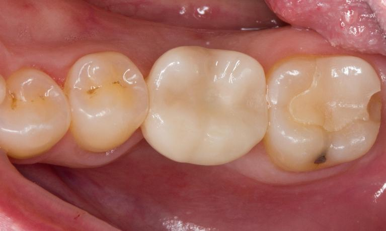 Posterior-Crowns-Before-Image