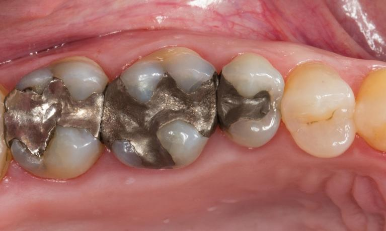 Replacing-Large-Silver-Fillings-with-All-Ceramic-Before-Image