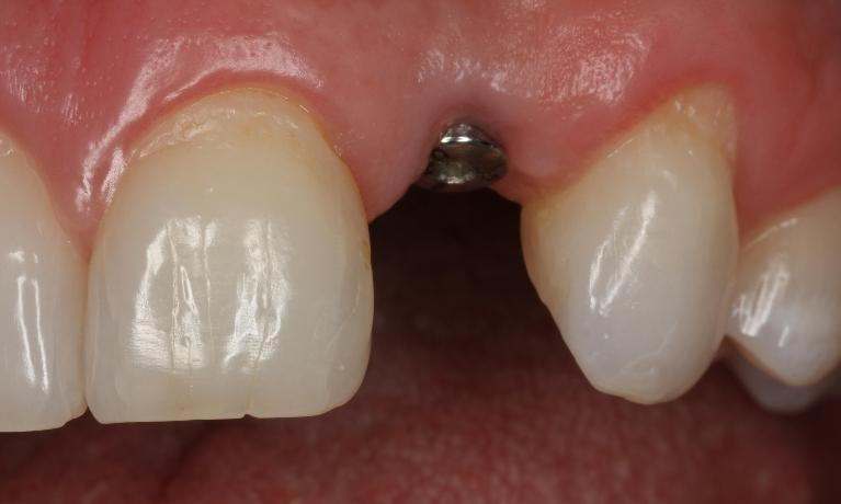 Restored-Implants-Anterior-Before-Image