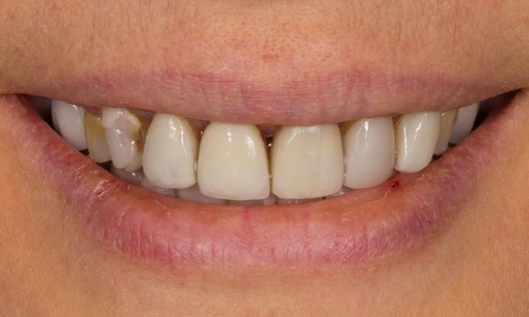 Smile-Design-with-Ceramic-Crowns-Before-Image
